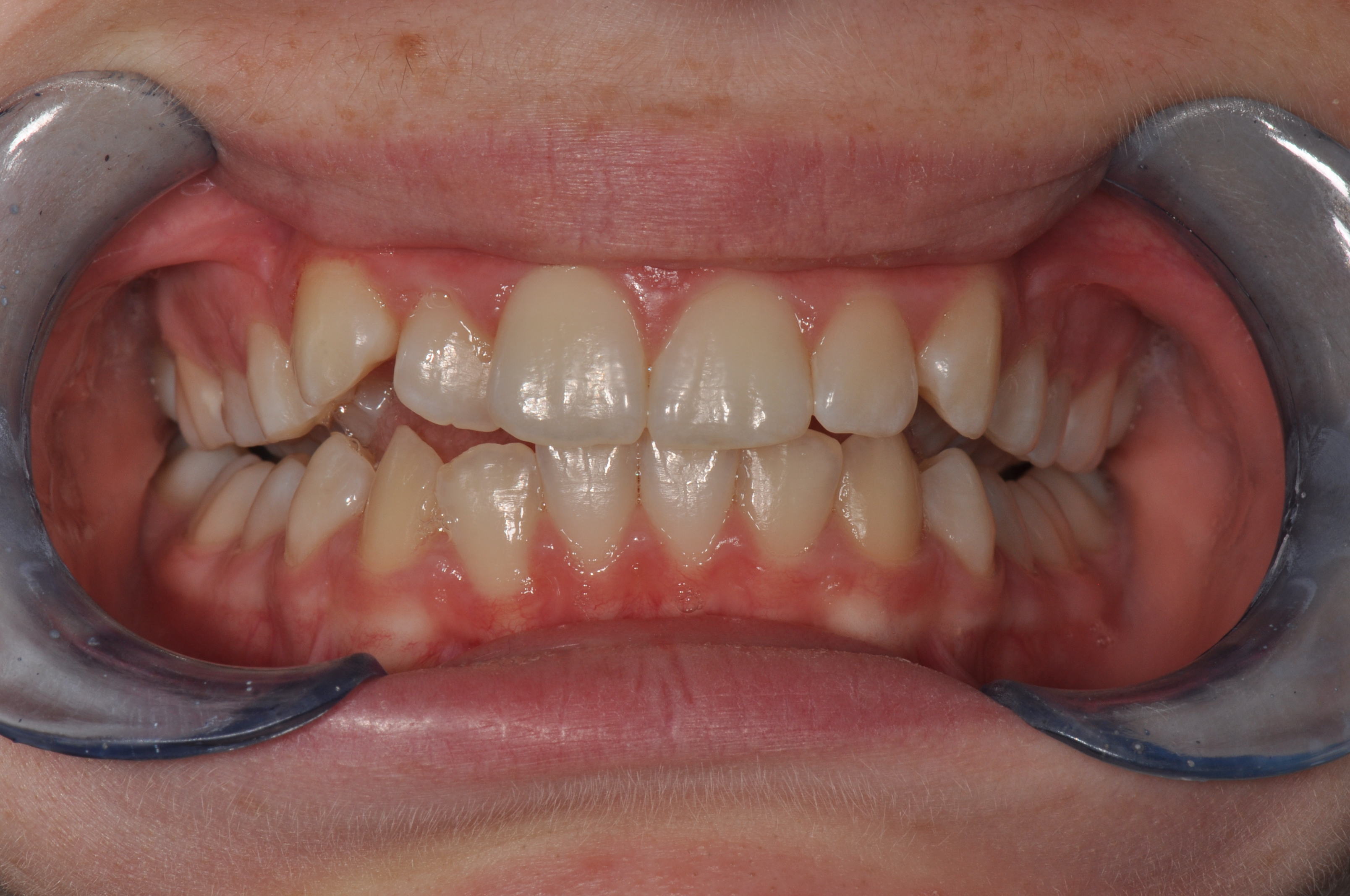 Before-Orthodontics