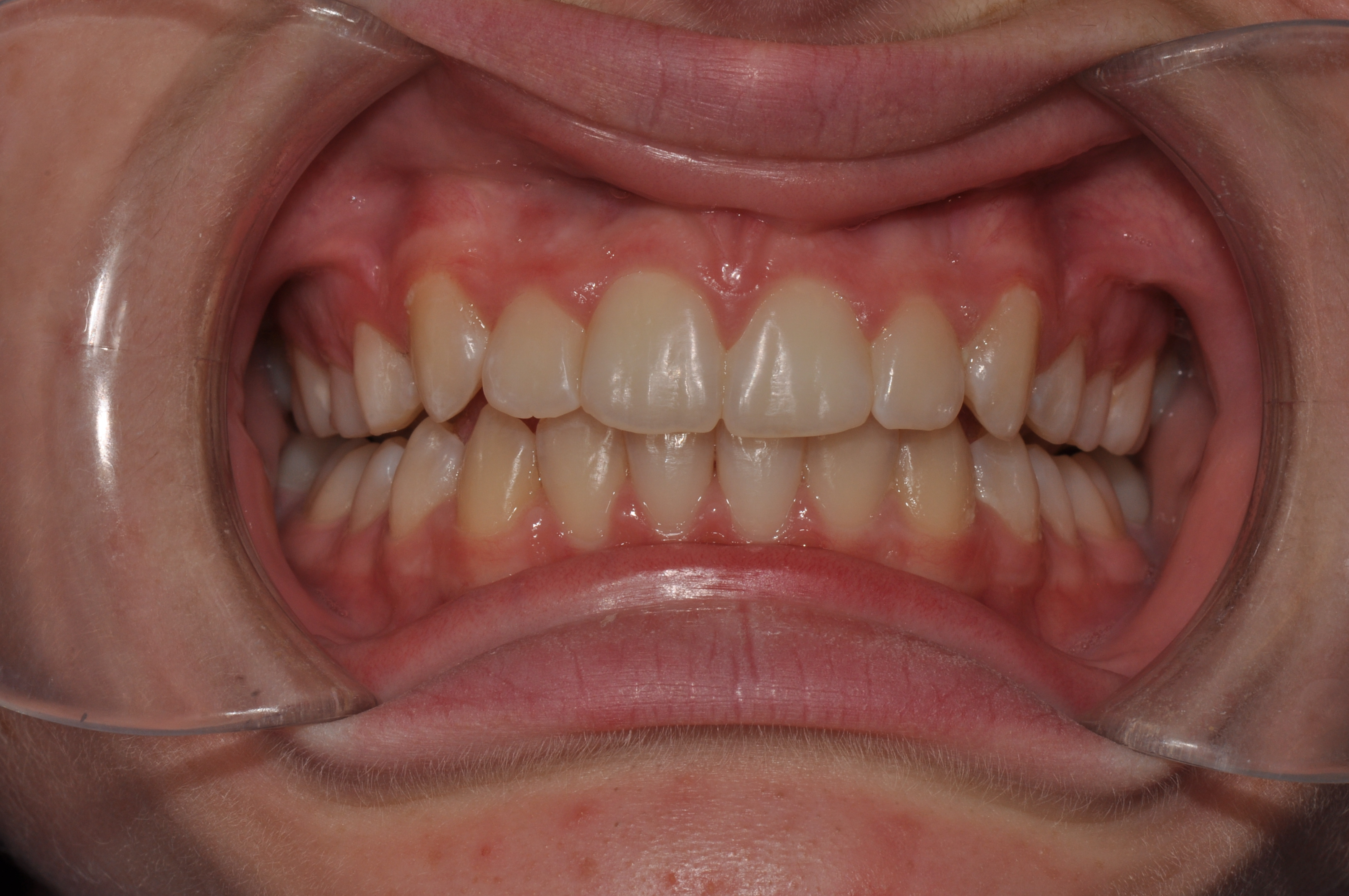 After-Orthodontics