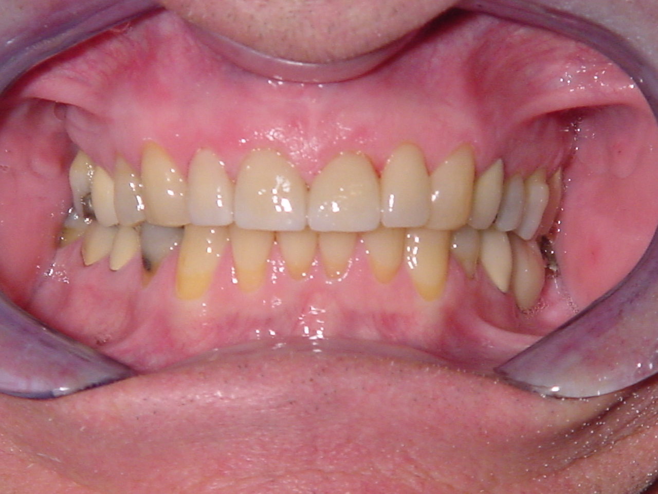After-Front Crowns