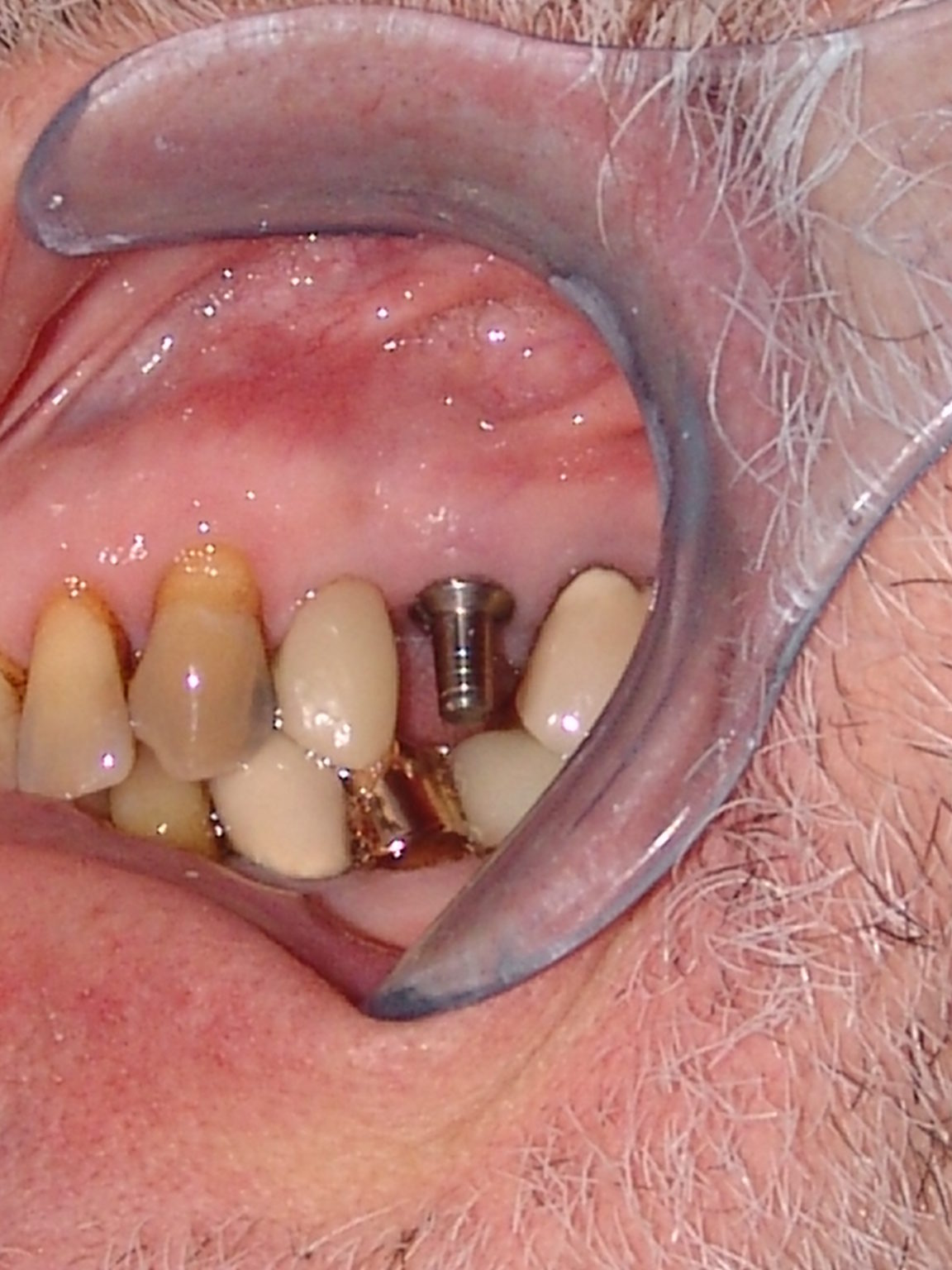 Before-Implant Restoration