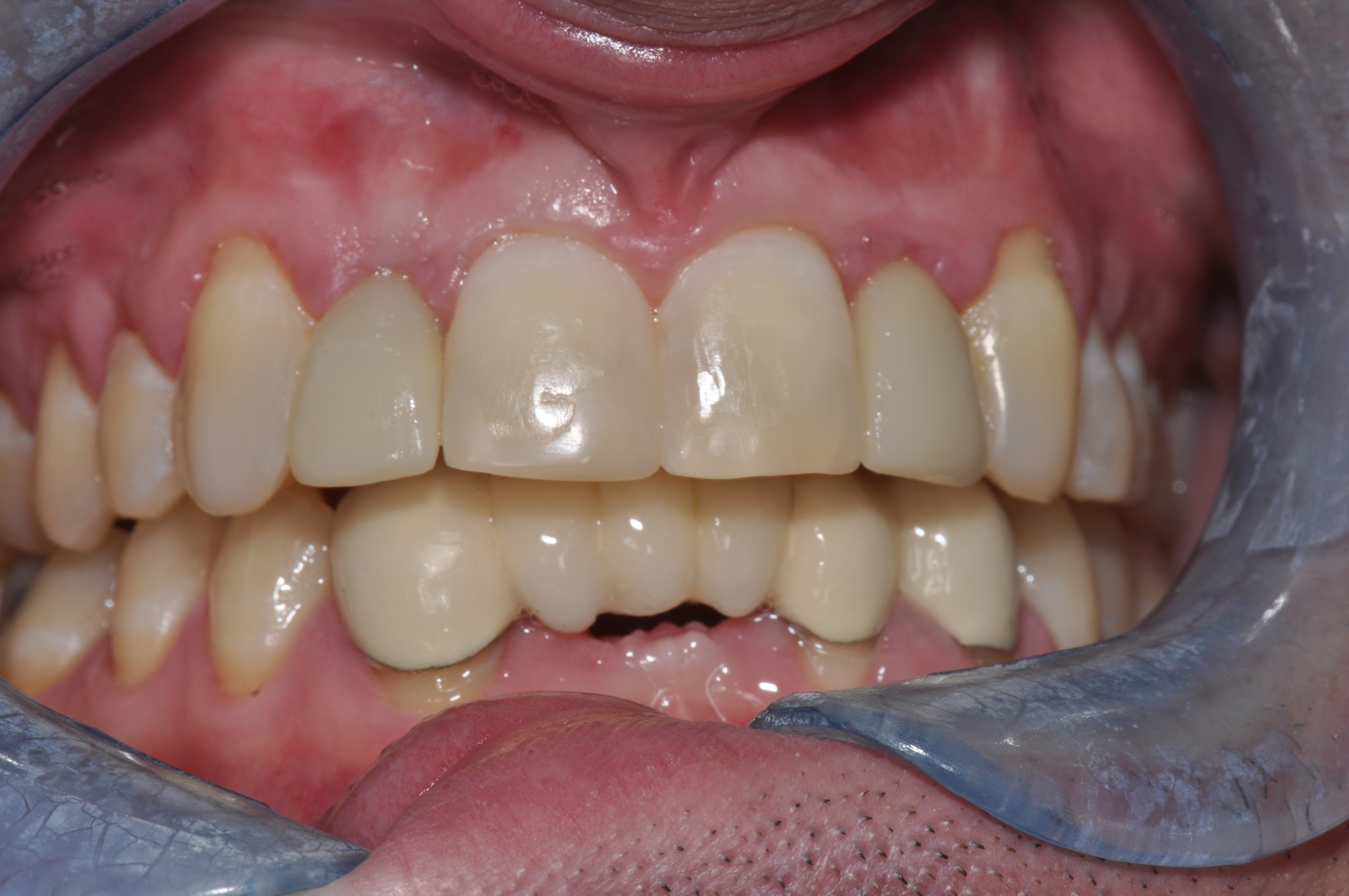 After-Ortho and Implants